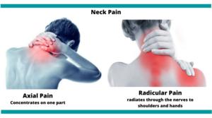 Neck-Pain-treatment-mumbai