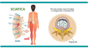 Sciatica-treatment-mumbai