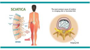 Sciatica-treatment-mumbai