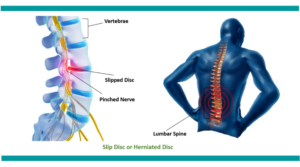 Slipped disc treatment mumbai