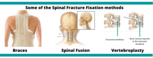 Spinal Fracture Fixation Surgery