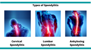 Spondylitis-treatment-mumbai